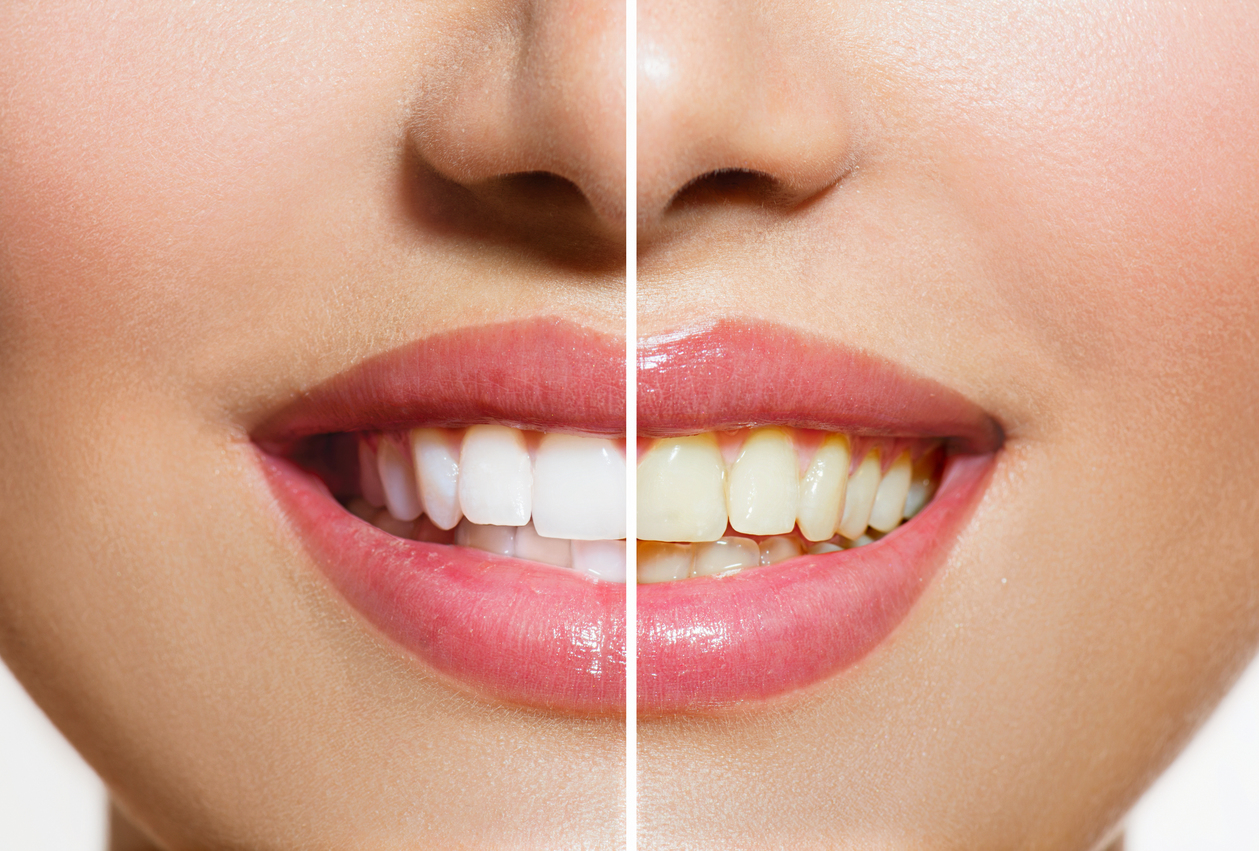 Beljenjem do blistavo sjajnih zuba