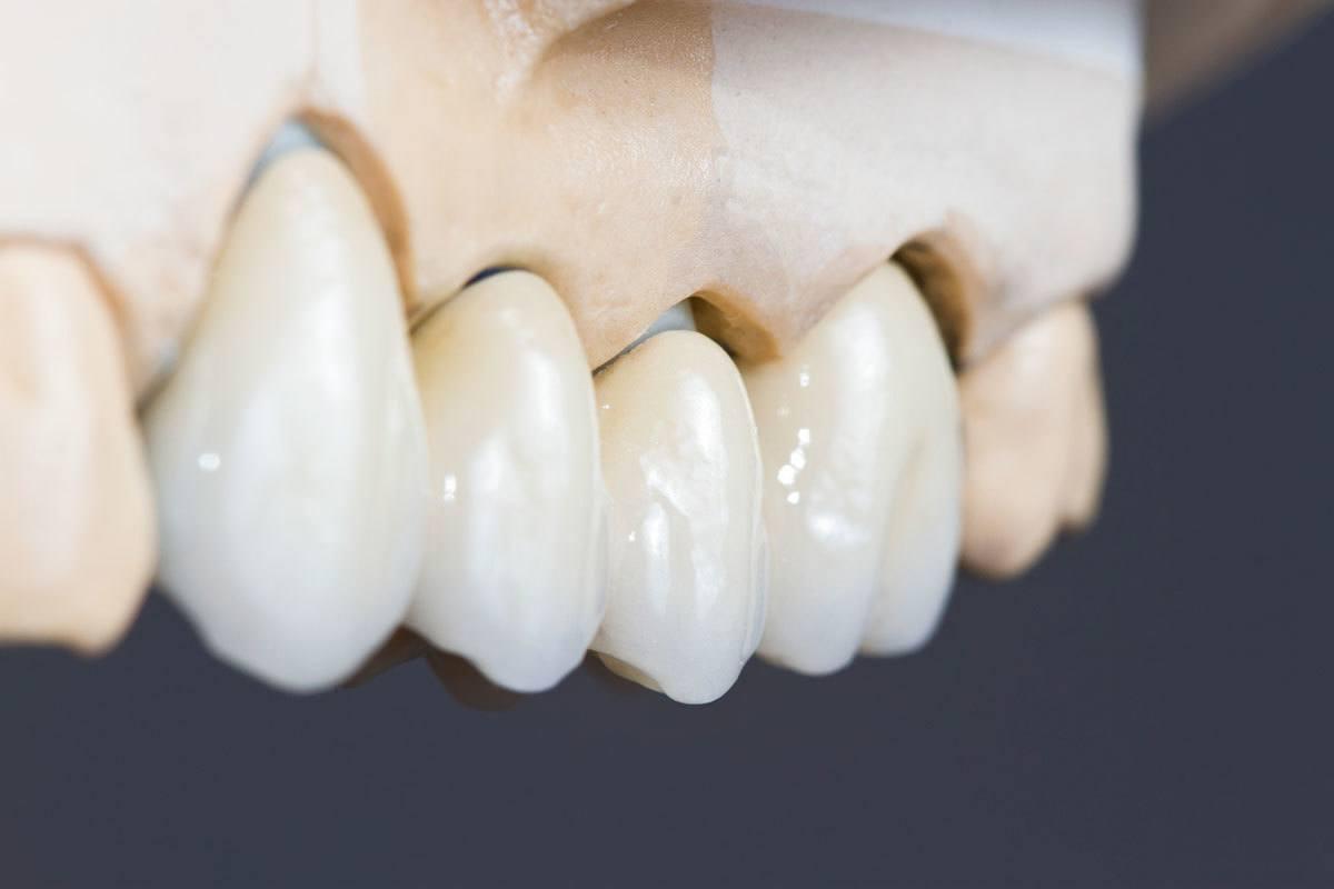 Upotpunjen osmeh – keramičke krunice i mostovi